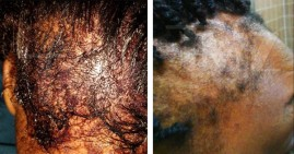 Black women suing L'Oreal after product burned their scalps