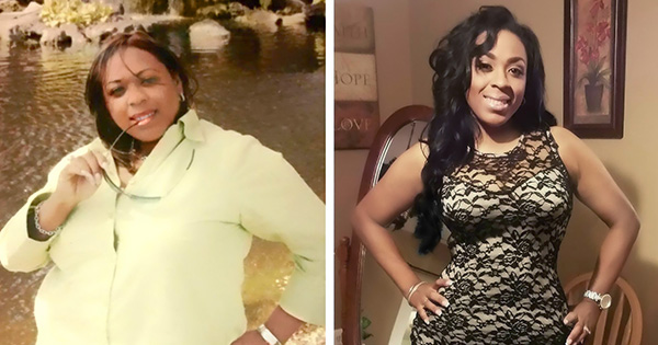 Chandra Harris, before and after